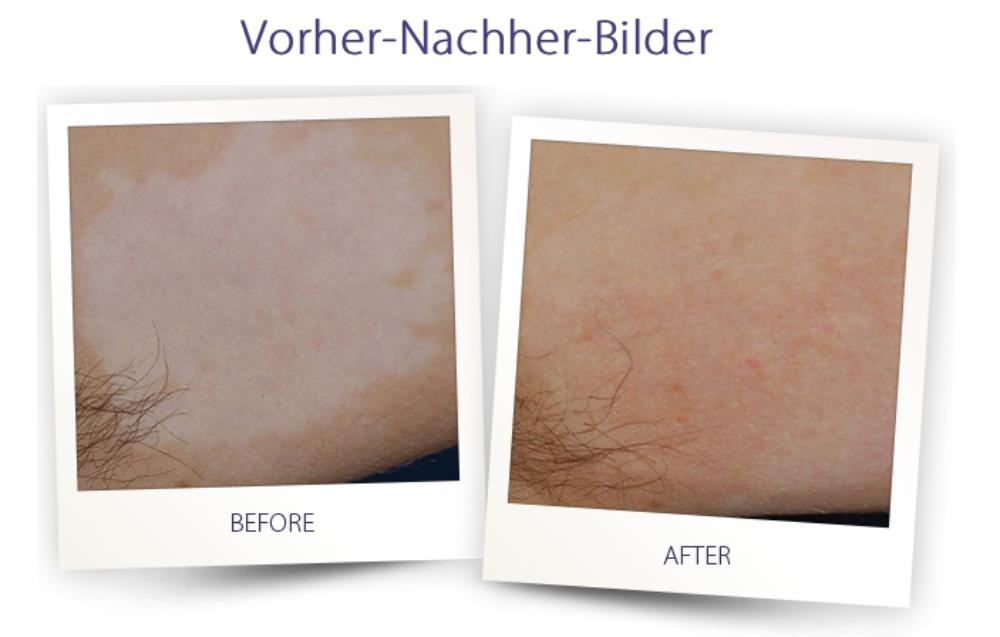 Dermateam Winterthur, Vitiligo Lichttherapie Excimer Dermateam Hautarzt Winterthur