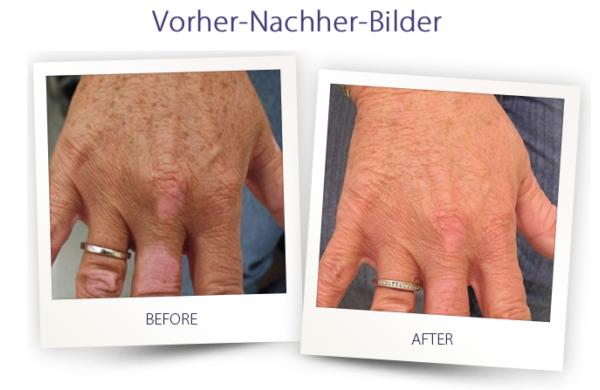 Dermateam Winterthur, Altersflecken Entfernen Hautarzt Winterthur