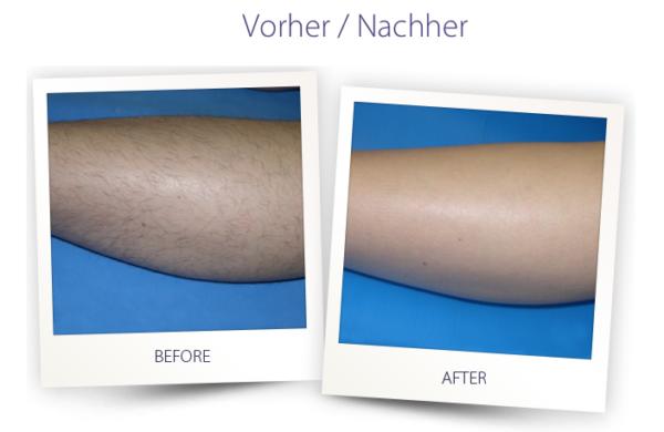 Dermateam Winterthur, Haarentfernung Dermateam Winterthur Laser Hautarzt