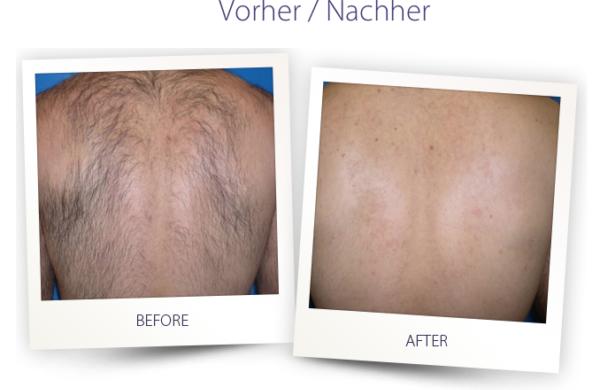 Dermateam Winterthur, Laserepilation Winterthur Hautarzt Dermateam