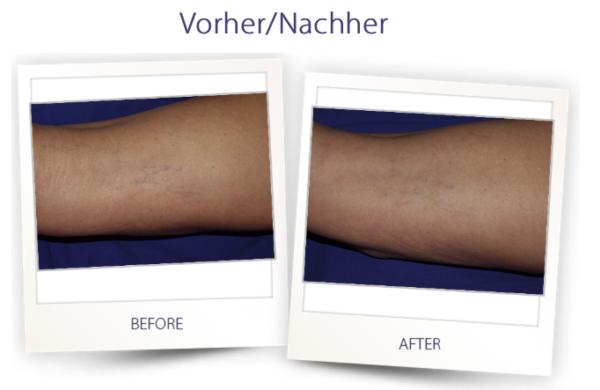 Dermateam Winterthur, Mydon Laser Krampfadern Besenreiser Hautarzt Winterthur
