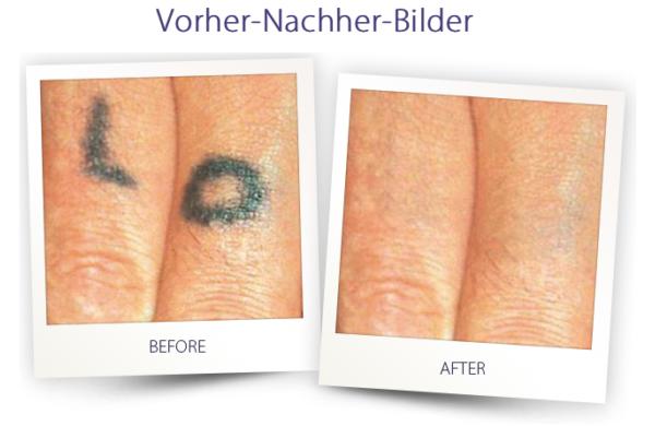 Dermateam Winterthur, Tätowierung Entfernen Hautarzt Winterthur