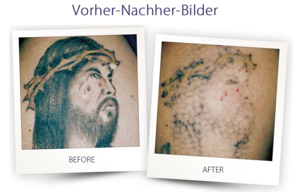 Dermateam Winterthur, Tattoo Entfernung Hautarzt Winterthur 1